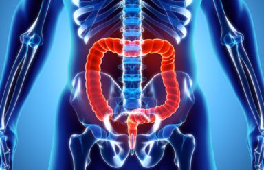 What you need to know about pancolitis