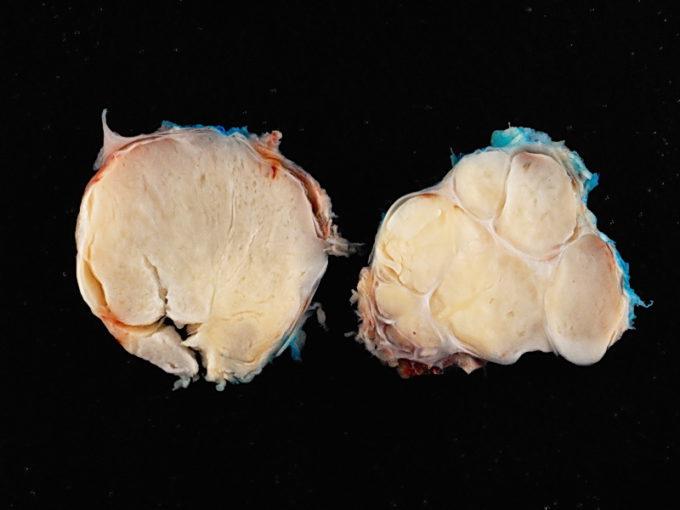 Liposarcoma Myxoid Reduced
