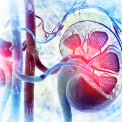 Чрескожная криоабляция как экономически более эффективный и безопасный метод лечения раннего рака почки (стадии T1a) по сравнению с робот-ассистированной резекцией почки
